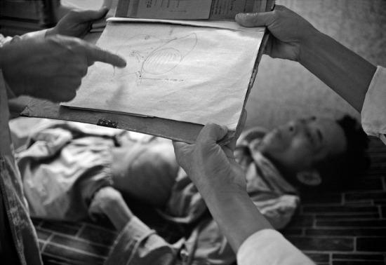 Bác sĩ Tôn Thất Tùng cầm hình vẽ lá gan minh họa bệnh tình của bệnh nhân.